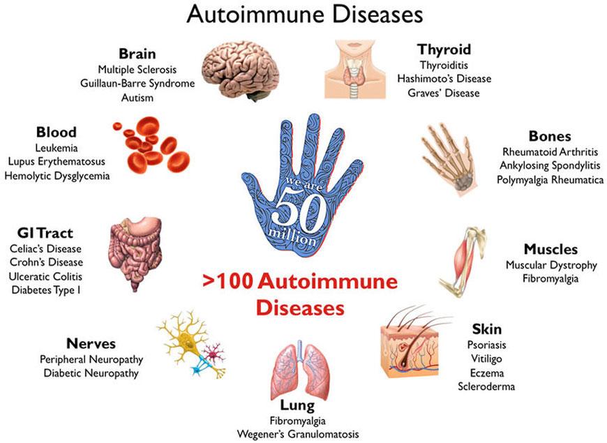 autoimmune disease1